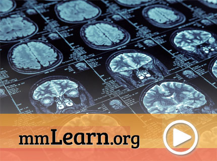 A Discussion on Alzheimer's Research